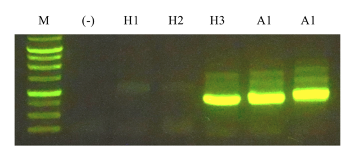 Primers were designed based on the ORF sequence (A1) from a metagenome fragment to identify its possible origin (H1, H2, H3).