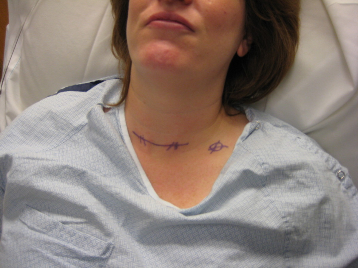My neck was marked in pen by Dr. M. The circle indicates the lower left parathyroid to be removed.