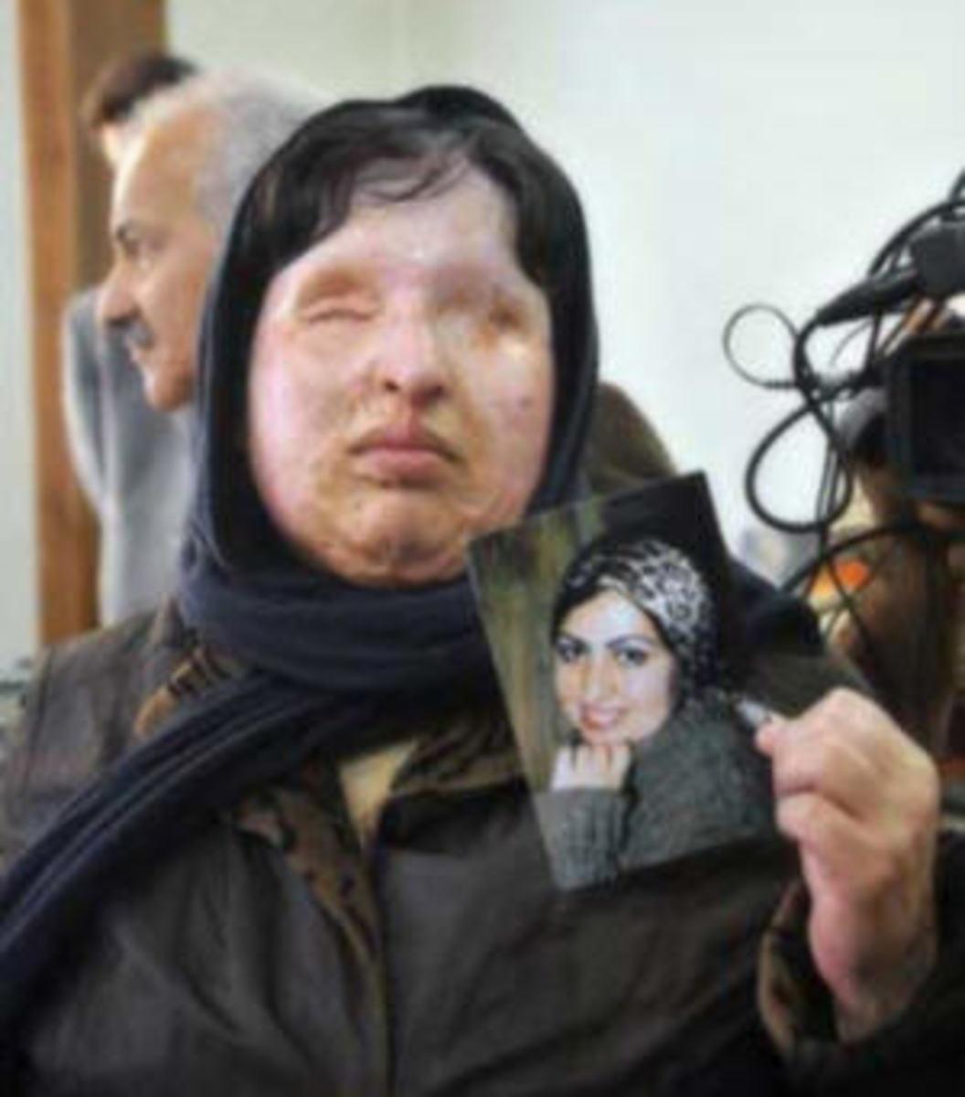 One victim of acid attacks