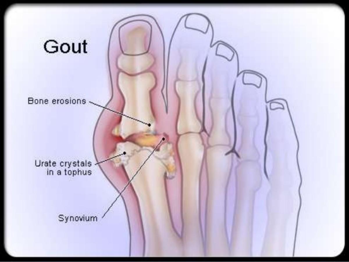 Gout Pathophysiology, Etiology and Rational Treatment