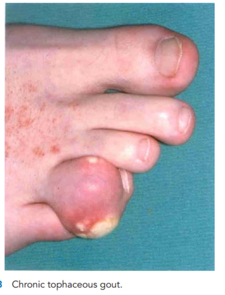 gout-pathophysiology-etiology-and-rational-treatment