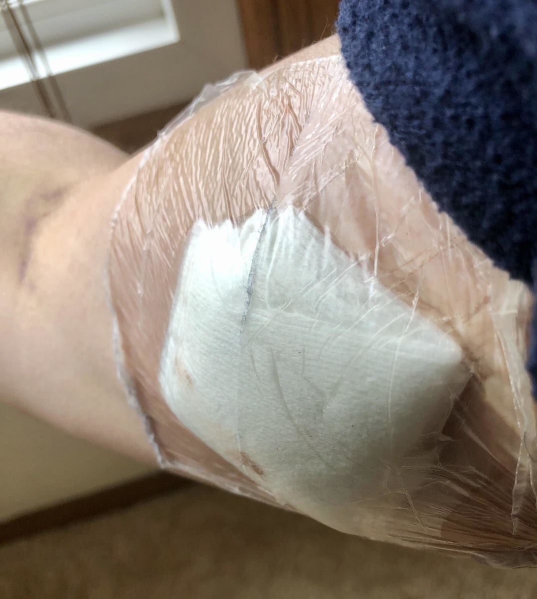 Midline bandage.