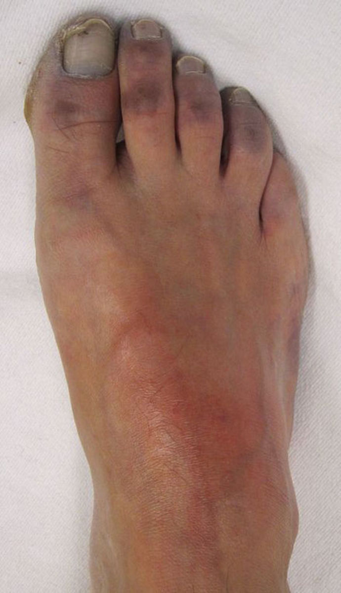 Toes With Nerve Damage