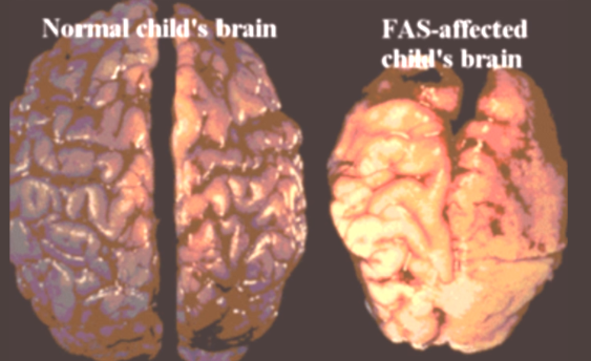 fetal alcohol syndrome fas causes symptoms and treatment Fetal alcohol syndrome can be defined as the physiological and psychological damage occurring in a child due to exposure to alcohol while it is in the womb know the causes, signs, symptoms, treatment, and effects of fetal alcohol syndrome.