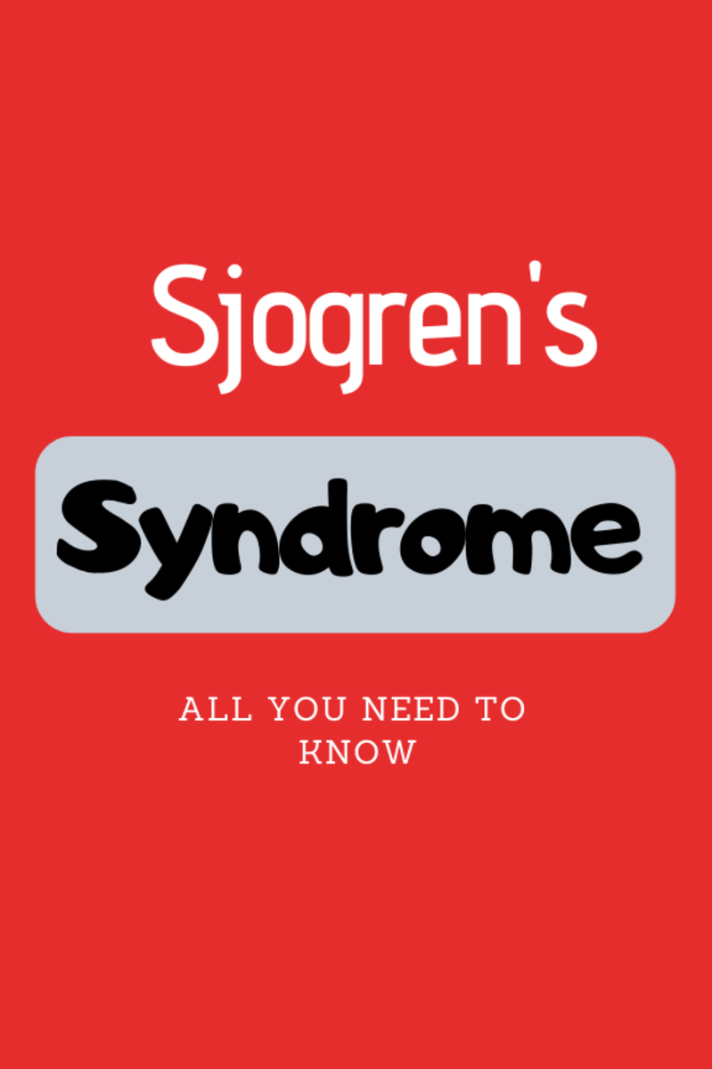 sjogrens-syndrome-symptoms-cause-diagnosis-complications-diet-and-treatments-for-this-disease