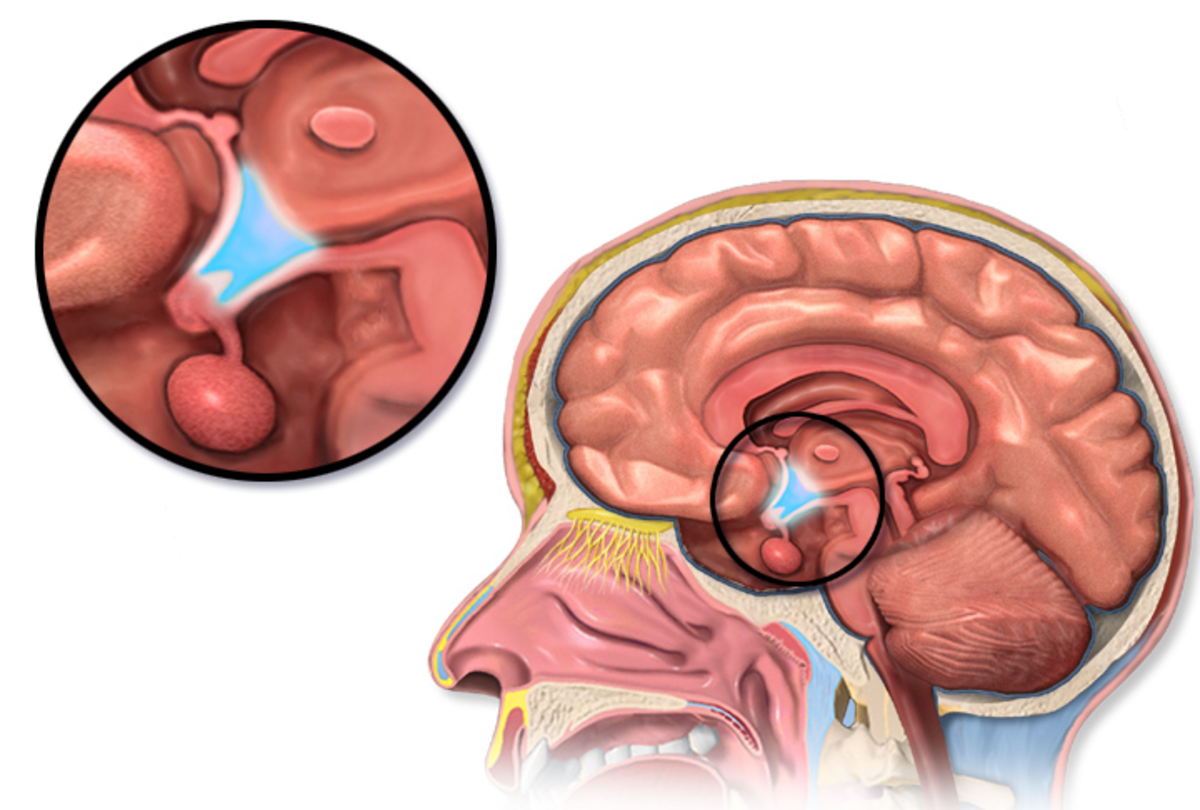 The main way in which leptin reduces appetite is believed to be via its effect on the hypothalamus in the brain (the circled blue area in the illustration).