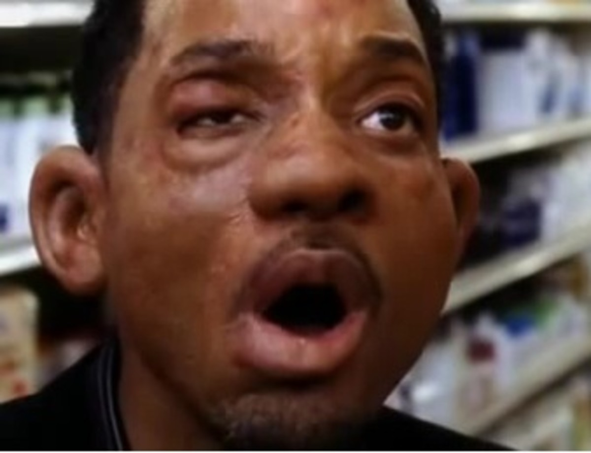 "Will Smith in the movie, ""Hitch."" My face looked like this when I entered the ER."