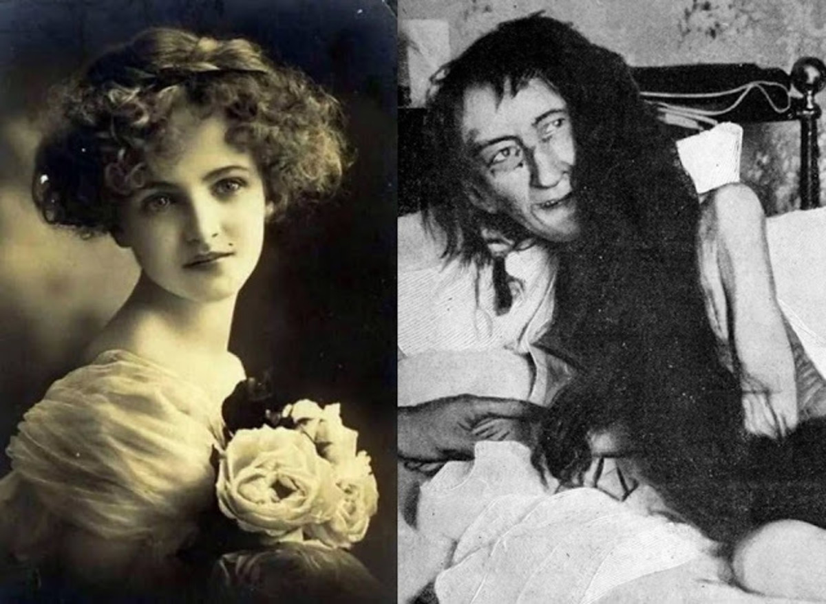the-disturbing-tale-of-blanche-monnier-locked-away-for-25-years