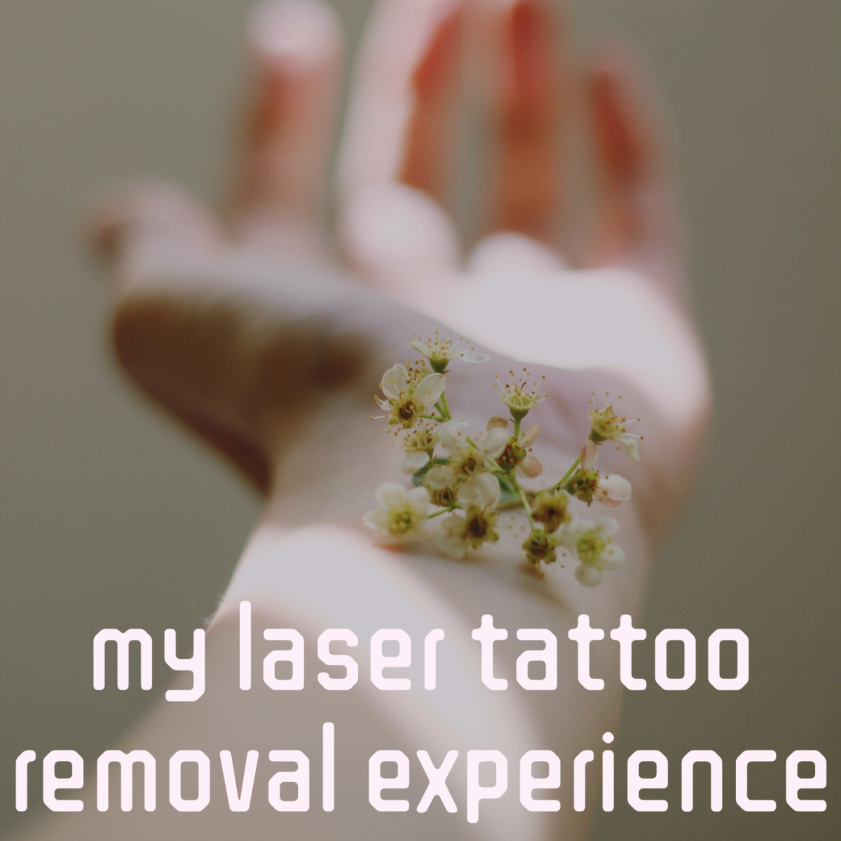 My personal laser tattoo removal experience.