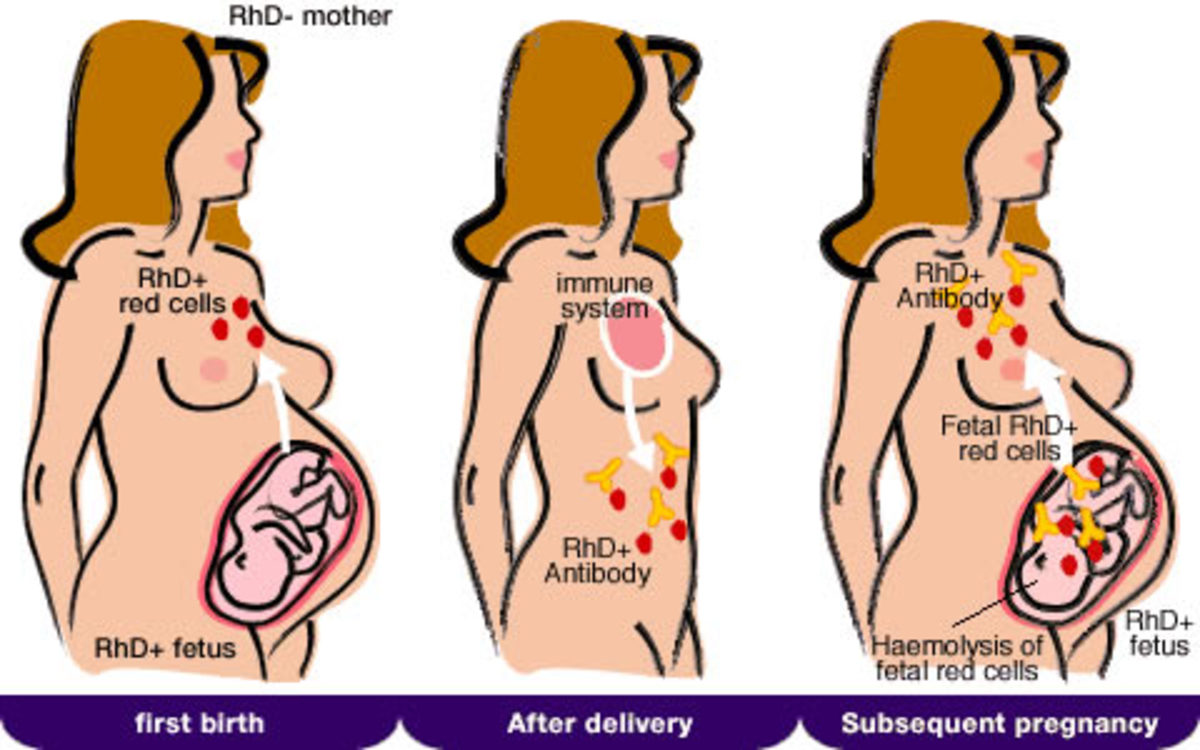 ABO Hemolytic Disease And General Management And Prophylaxis Of Hemolytic Disease Of Newborn