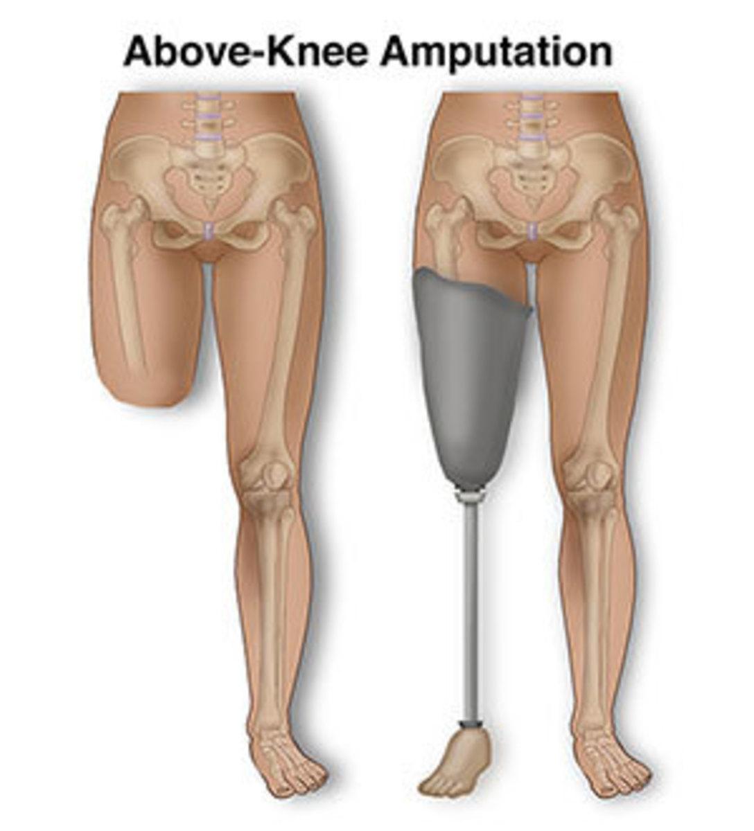 amputation-and-prosthetics