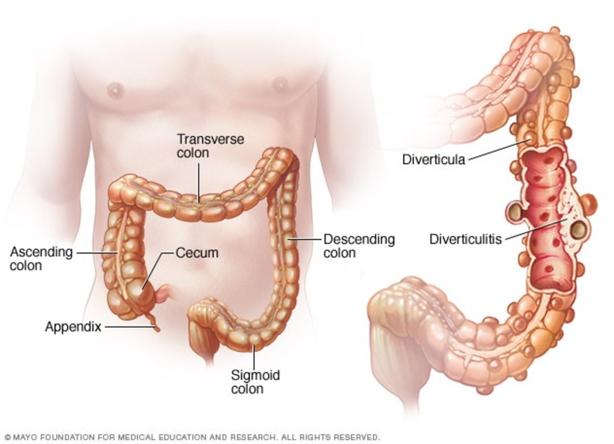 What Is Diverticulitis?