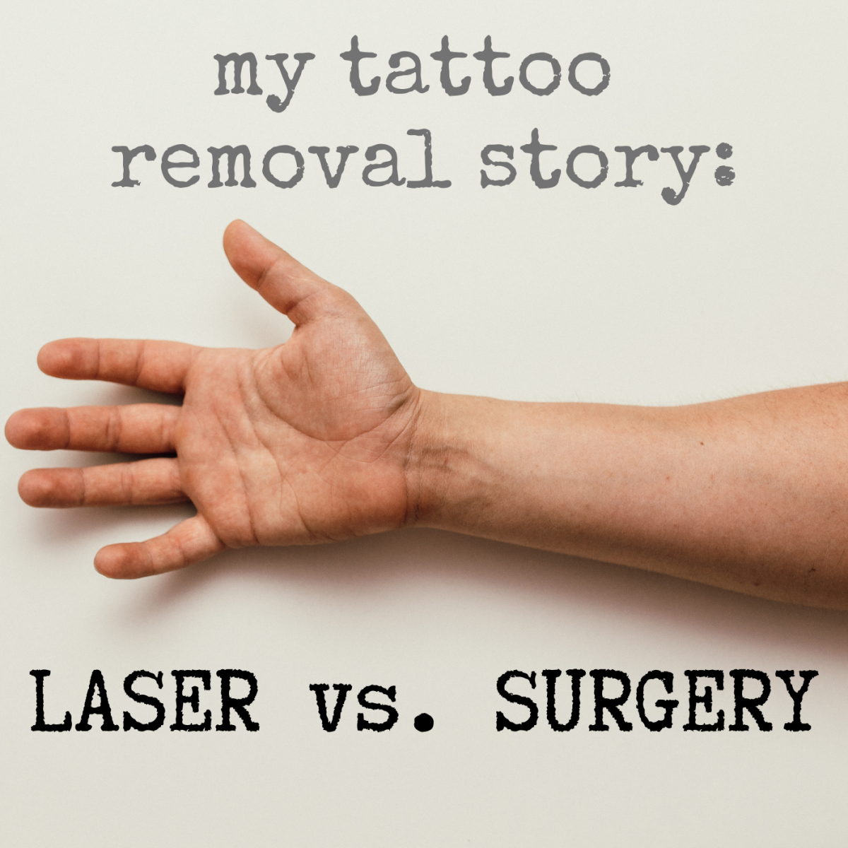 I tried both laser removal and surgical excision to remove my tattoos: Here's my story (with photos).