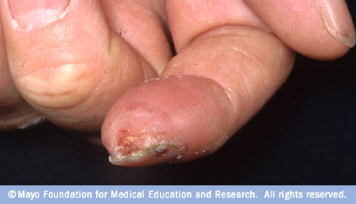 Frostbite- Affects mostly the extremities of the body. It can leave the skin with painful blisters which in extreme cases can turn into black scabs and require amputation.