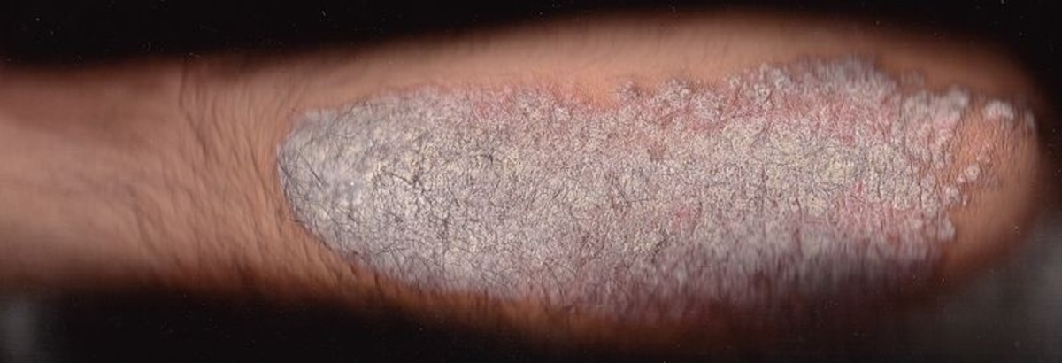 Psoriasis Patients: Medical Skin and Light Therapy Treats Plaque Layers