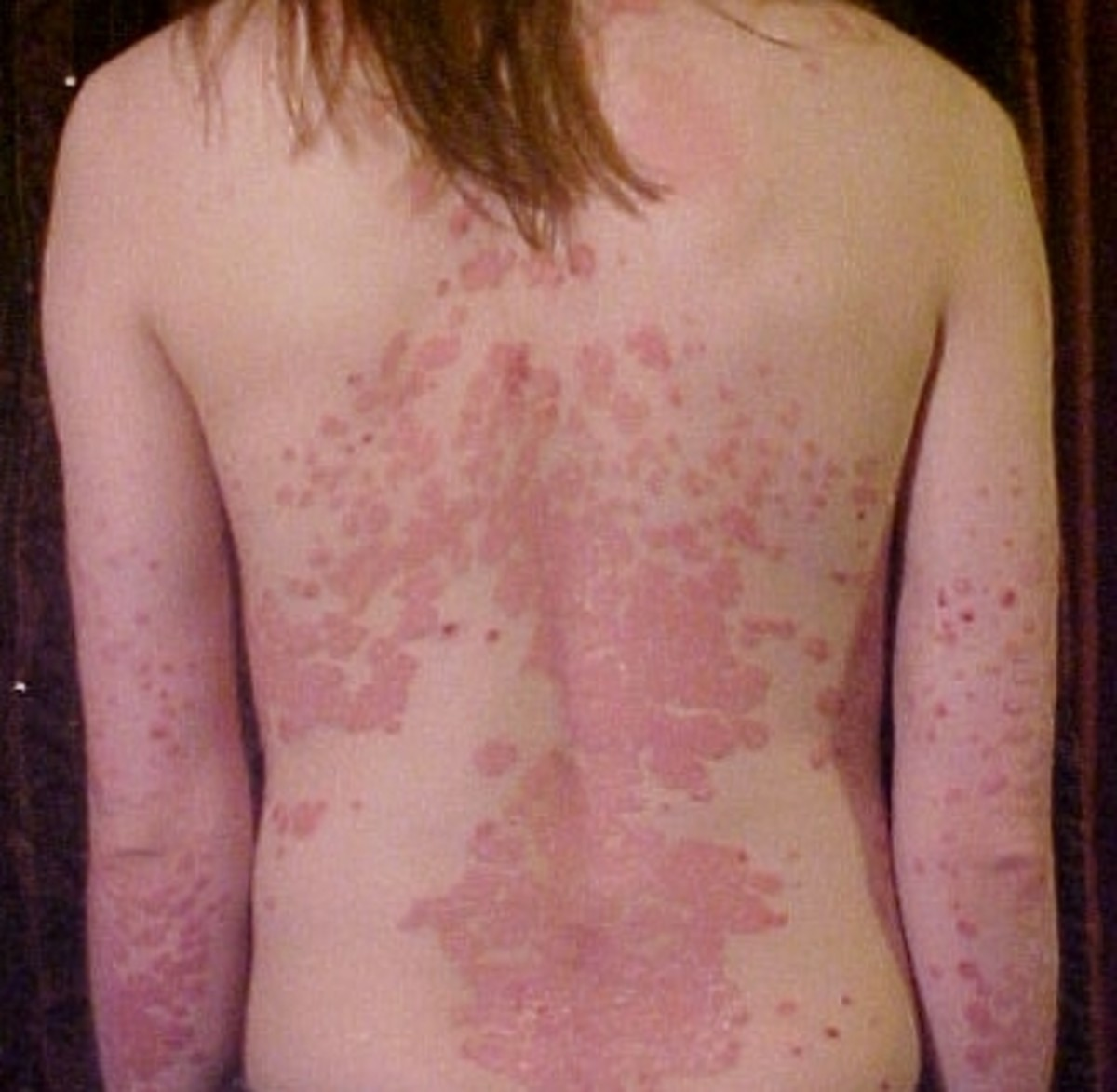 Psoriasis affecting the back
