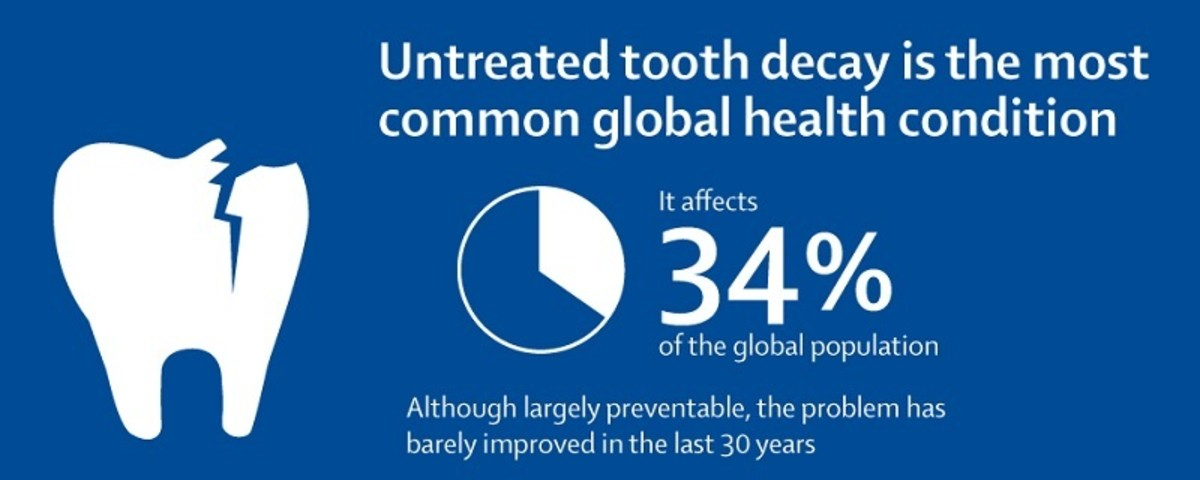 Untreated tooth decay is the most common global health condition.