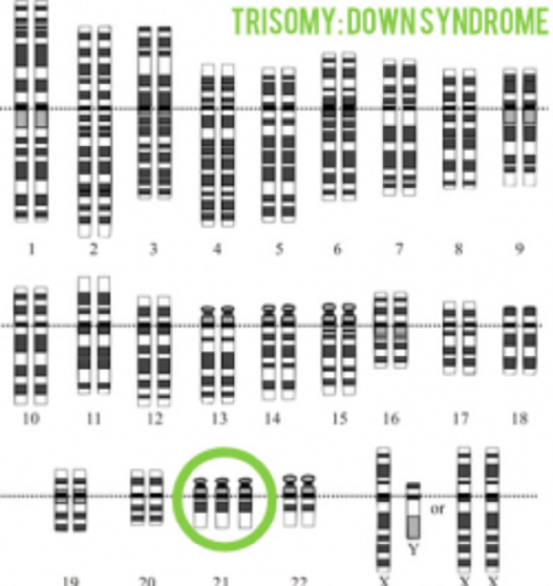 Karyotype Illustrating Trisomy of the 21st Chromosome