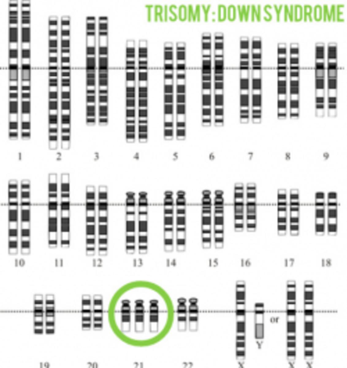 Karyotype Illustrating Trisomy of the 21st Chromosome