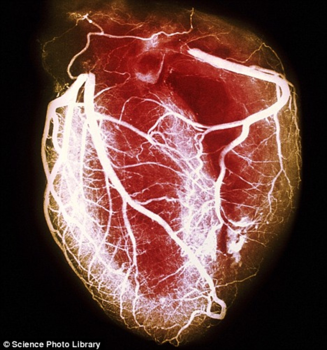 Heart Showing Arteries Become Occluded  source Medicinenet