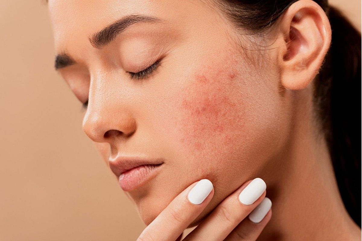 Photoirritants can cause rashes.