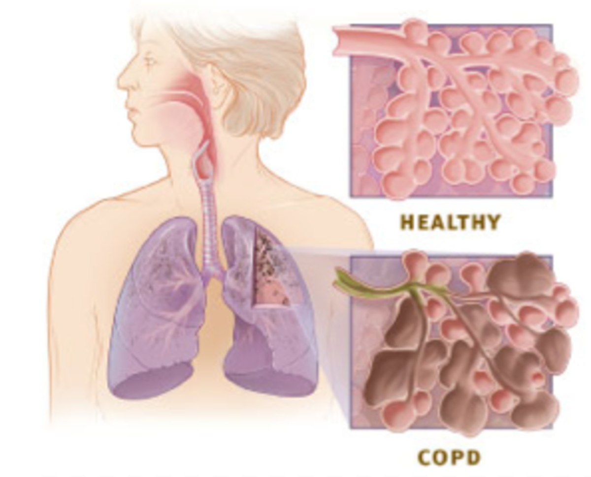 Healthy versus COPD-affected lungs.