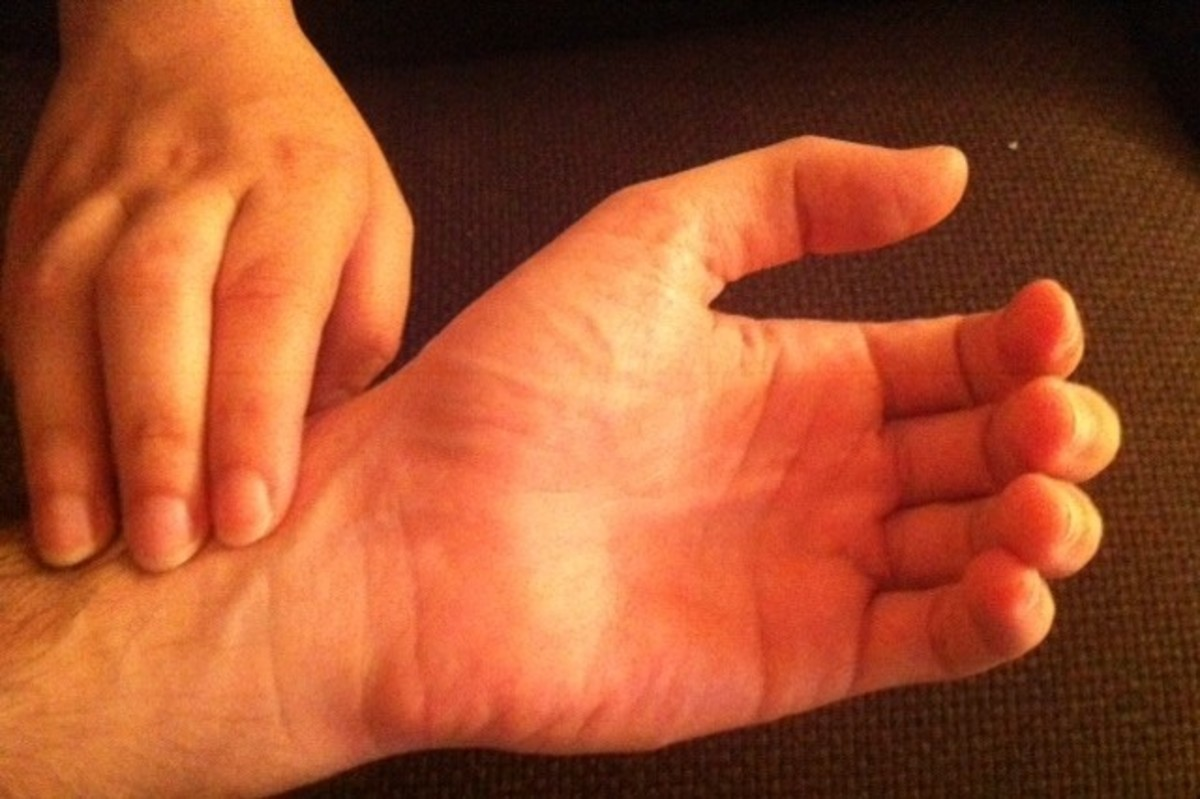 Palpation of the radial arterial pulse