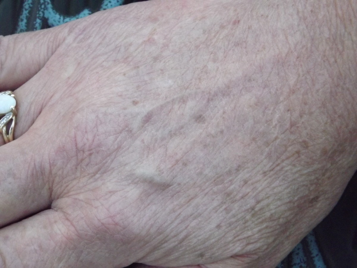 How to Get Rid of Brown Spots on Hands - Liver Spots
