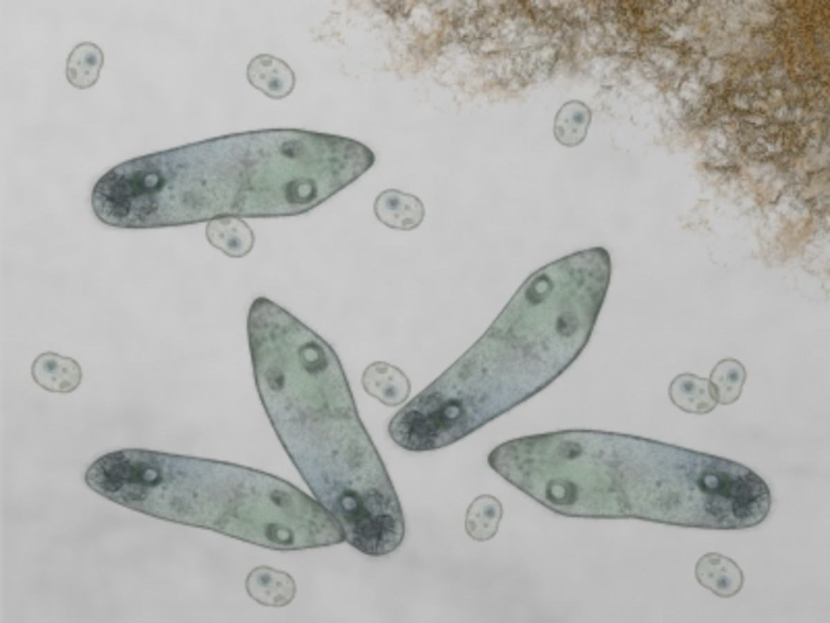 This microscope microorganisms can be used to reduce toxic waste in the subsurface environment