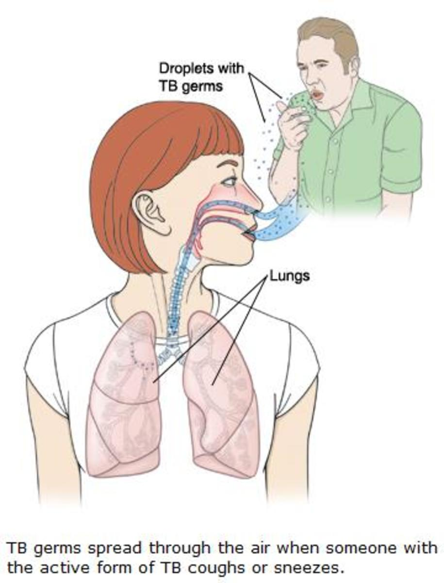 tuberculosis-and-its-types