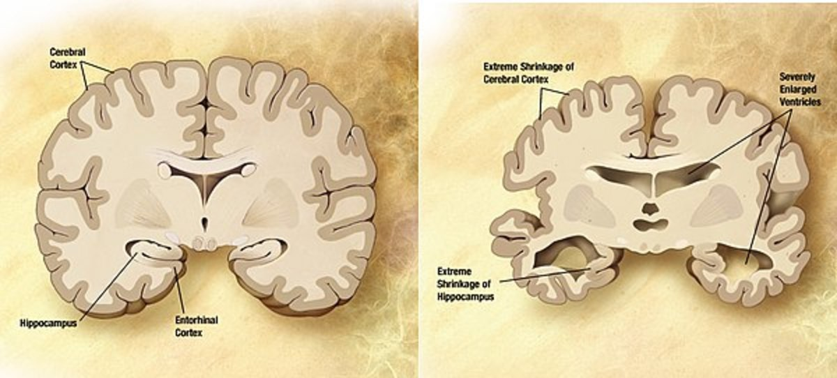 Alzheimer Disease And Research