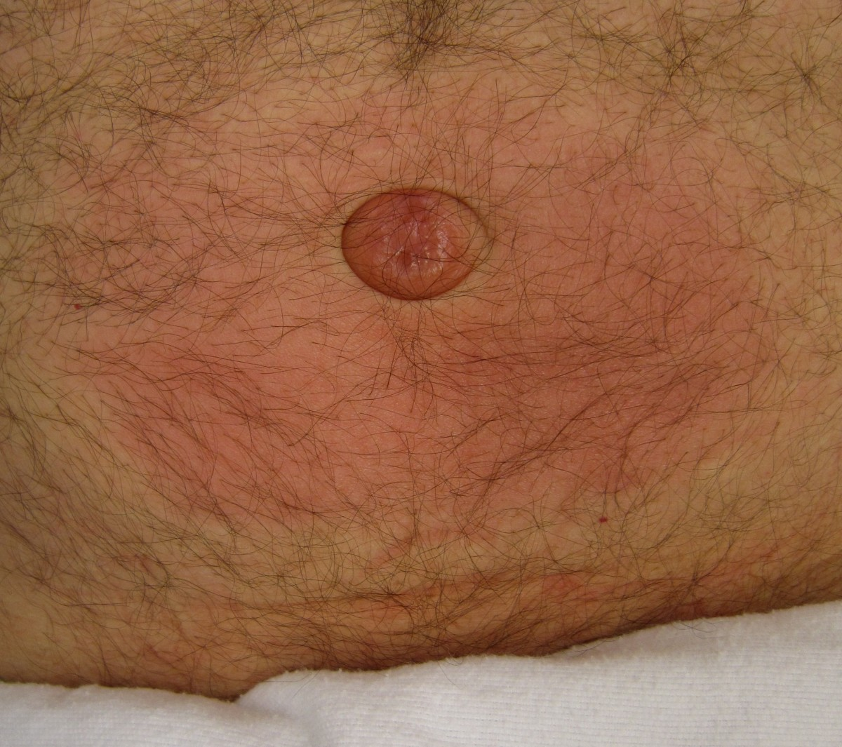 What an Umbilical Hernia Is and What to Do About It
