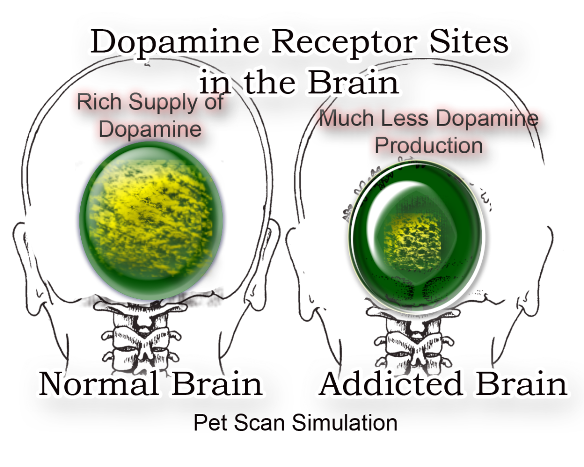 Pet Scan Simulation Reveals Dopamine Receptor Sites in the Brain