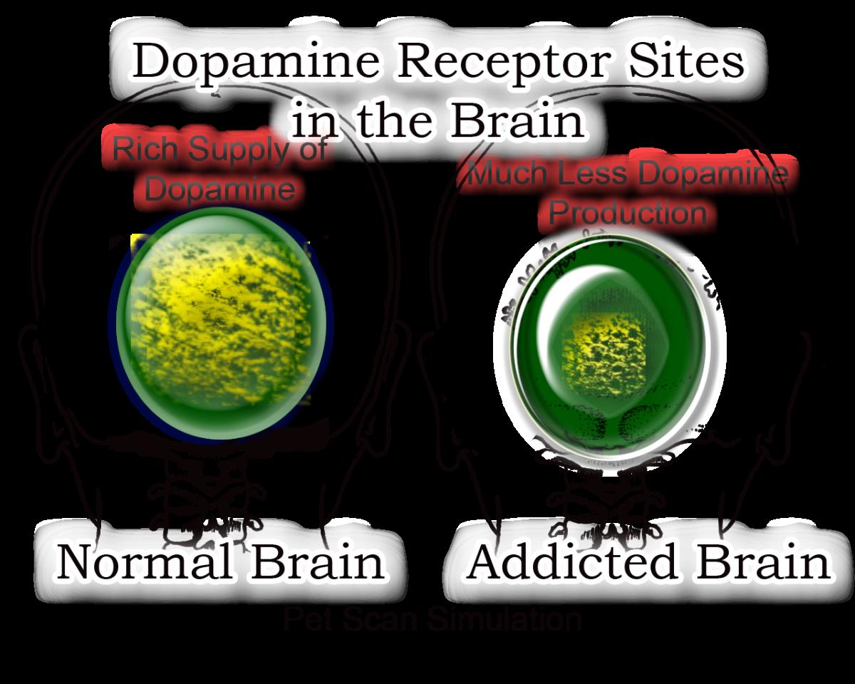 Dopamine Receptors And Addiction Dopamine receptor sites