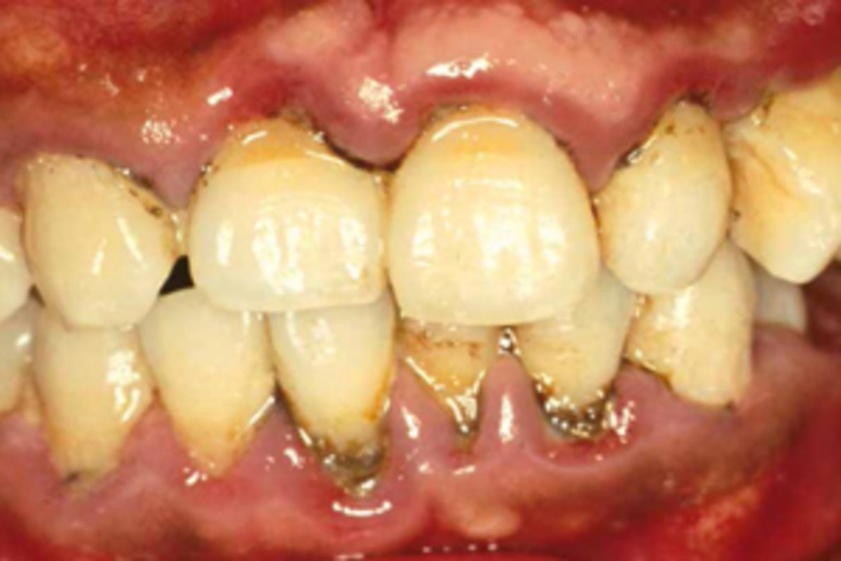 how to fix yellow teeth from smoking