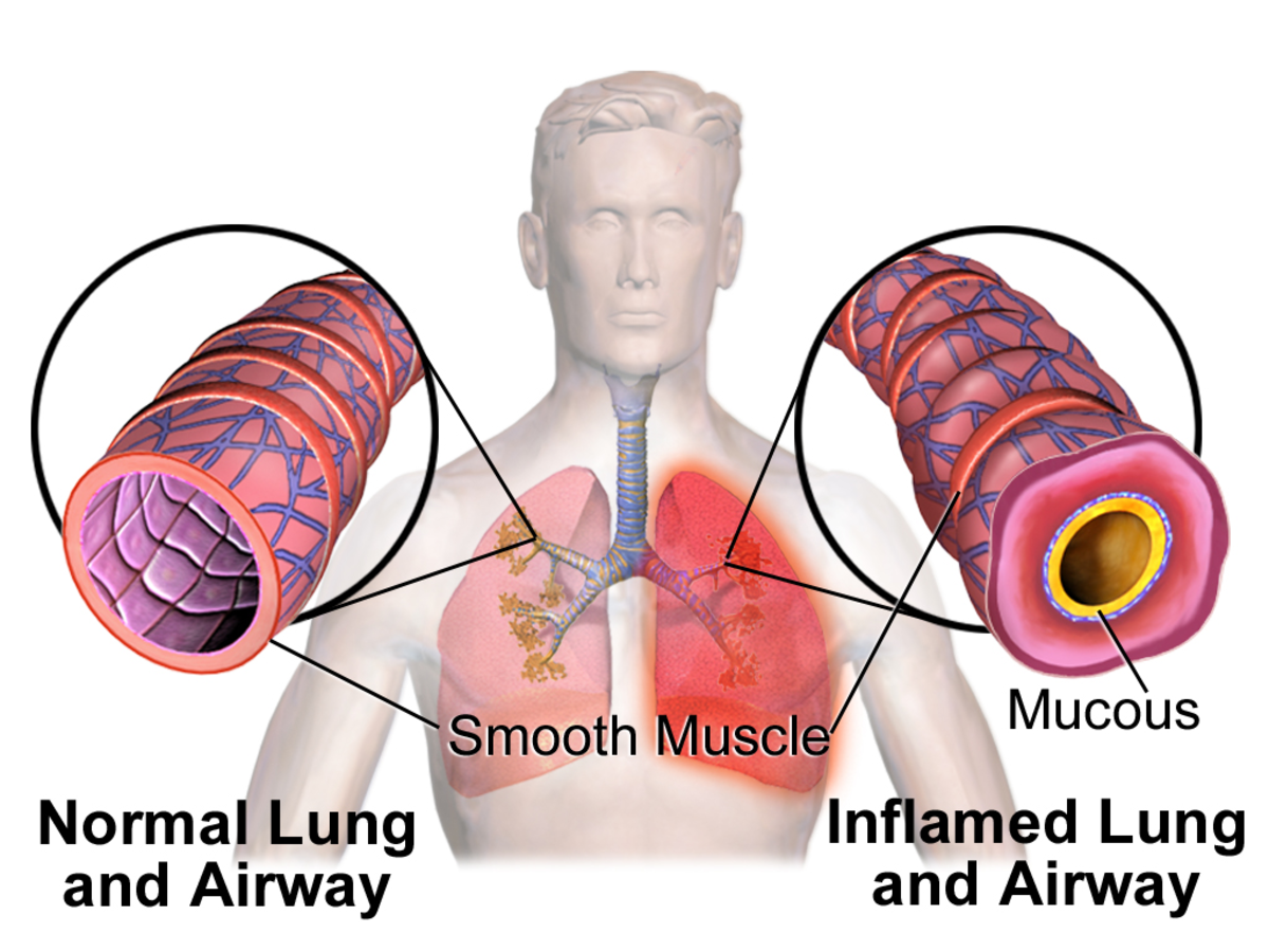 Chronic Obstructive Pulmonary Disease  (COPD) And Risk Factors