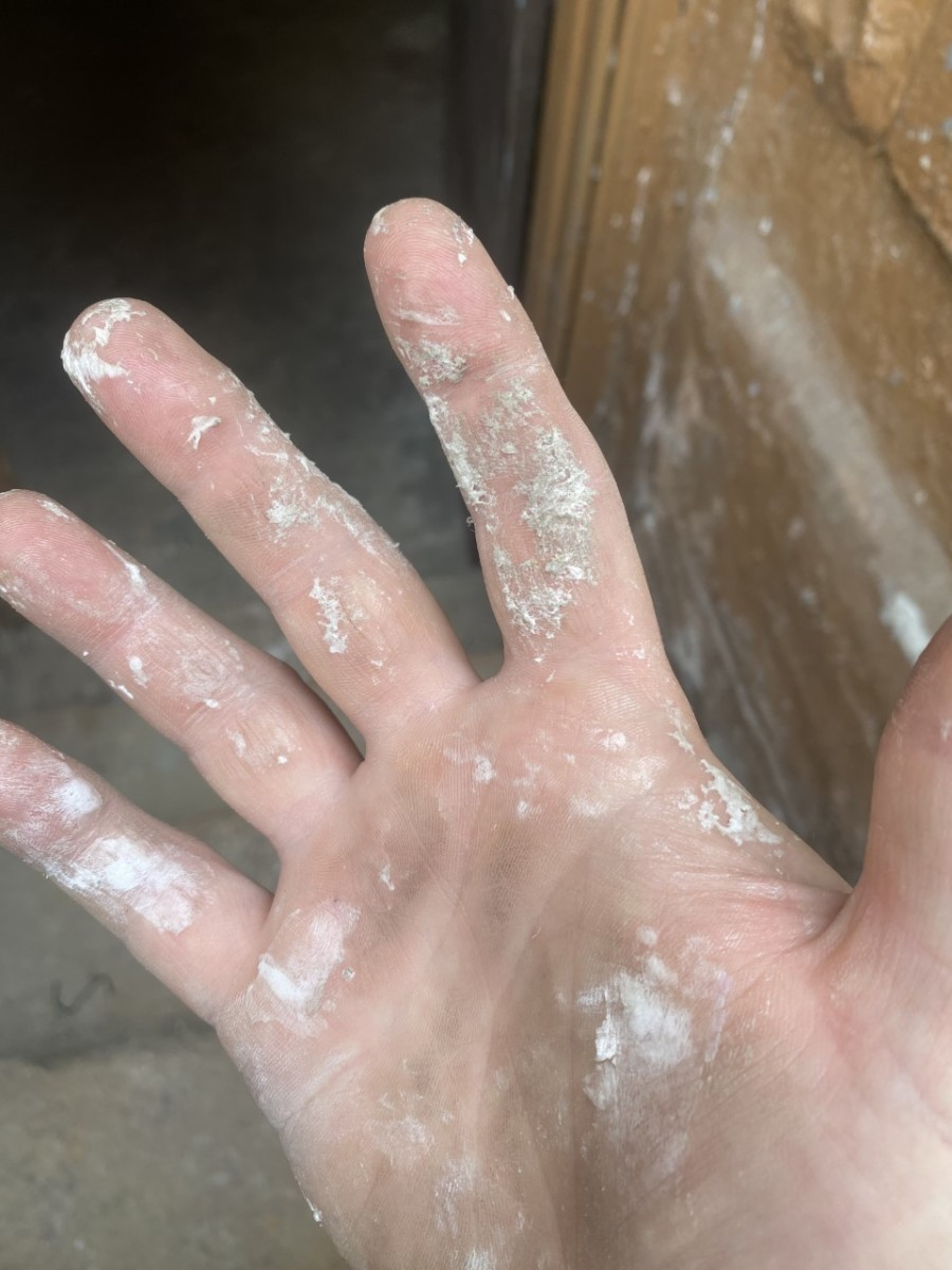 Spray foam residue on my hand...24 hours after using it and numerous washings.