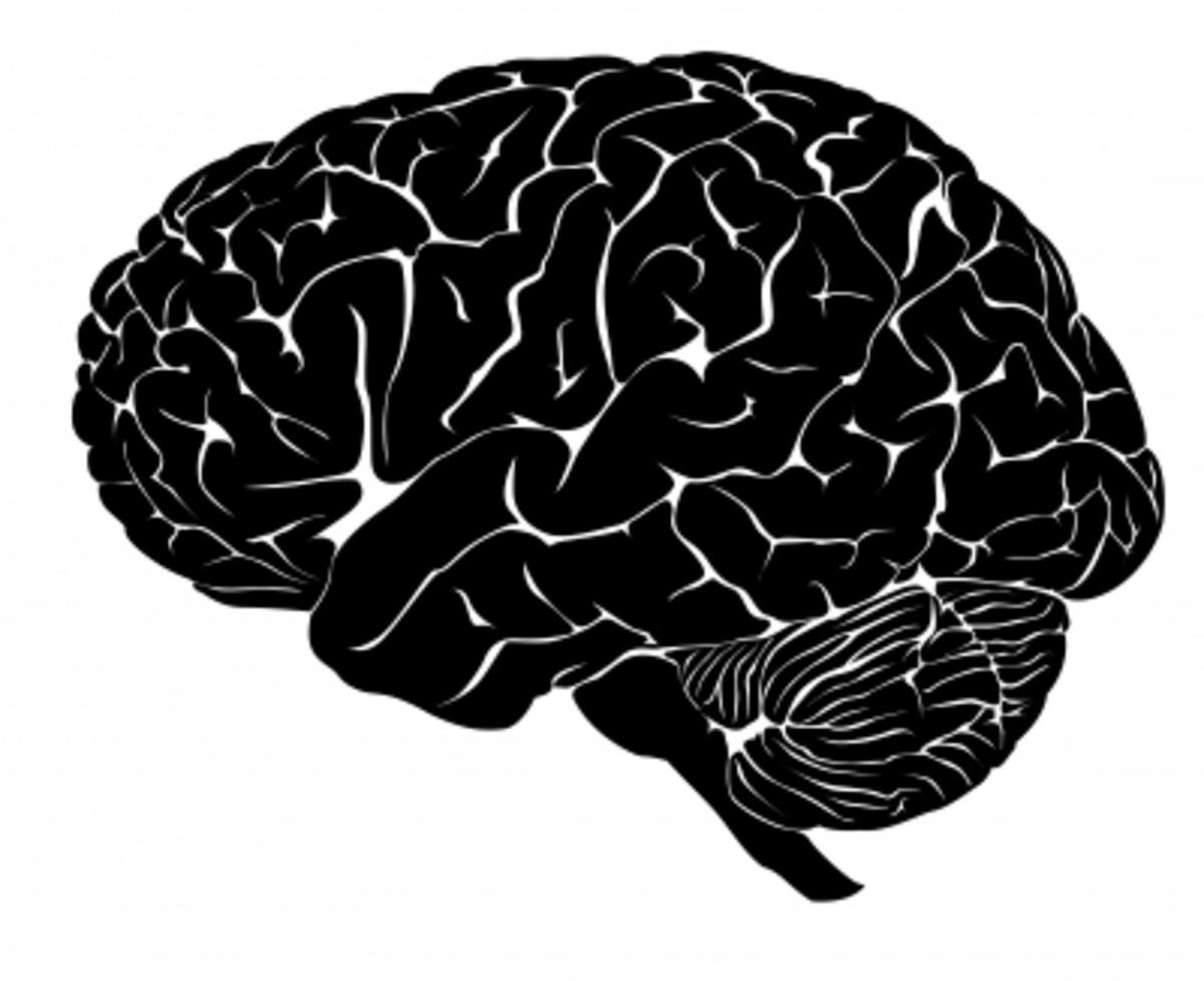 finding-motivation-after-stroke-or-brain-damage