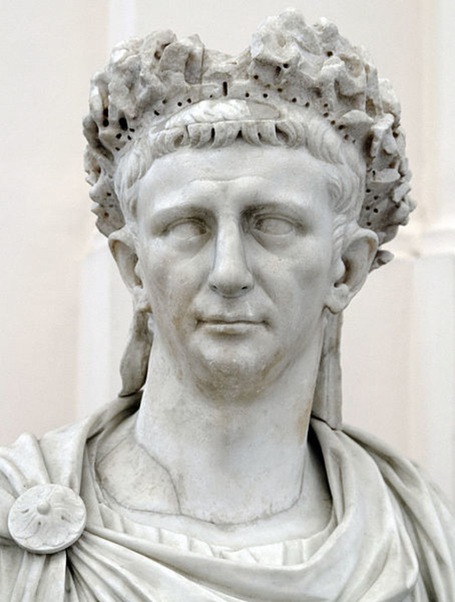 Roman Emperor Claudius, who was famous even before Robert Graves wrote about him in I Claudius.