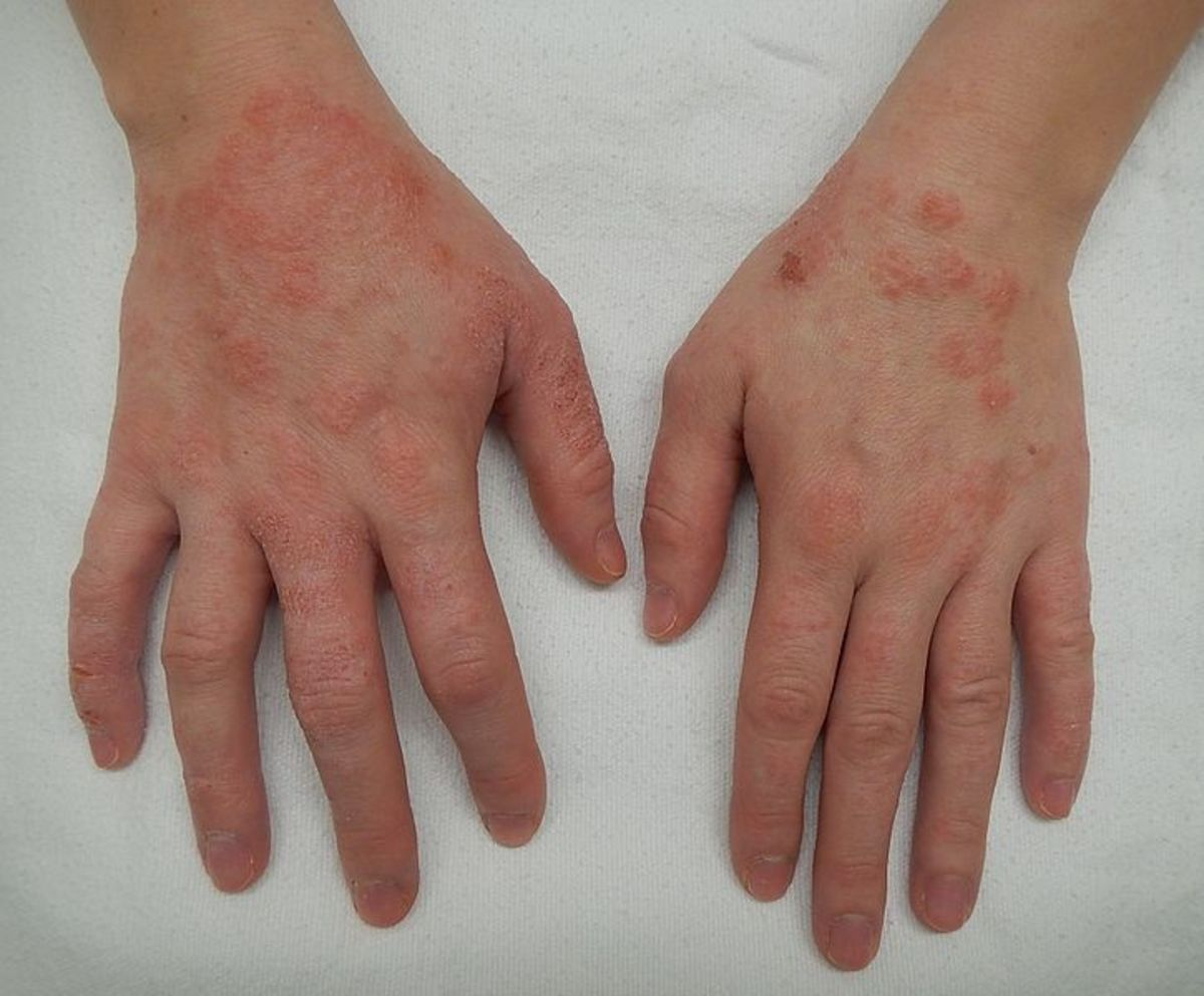 Dermatitis of the hands