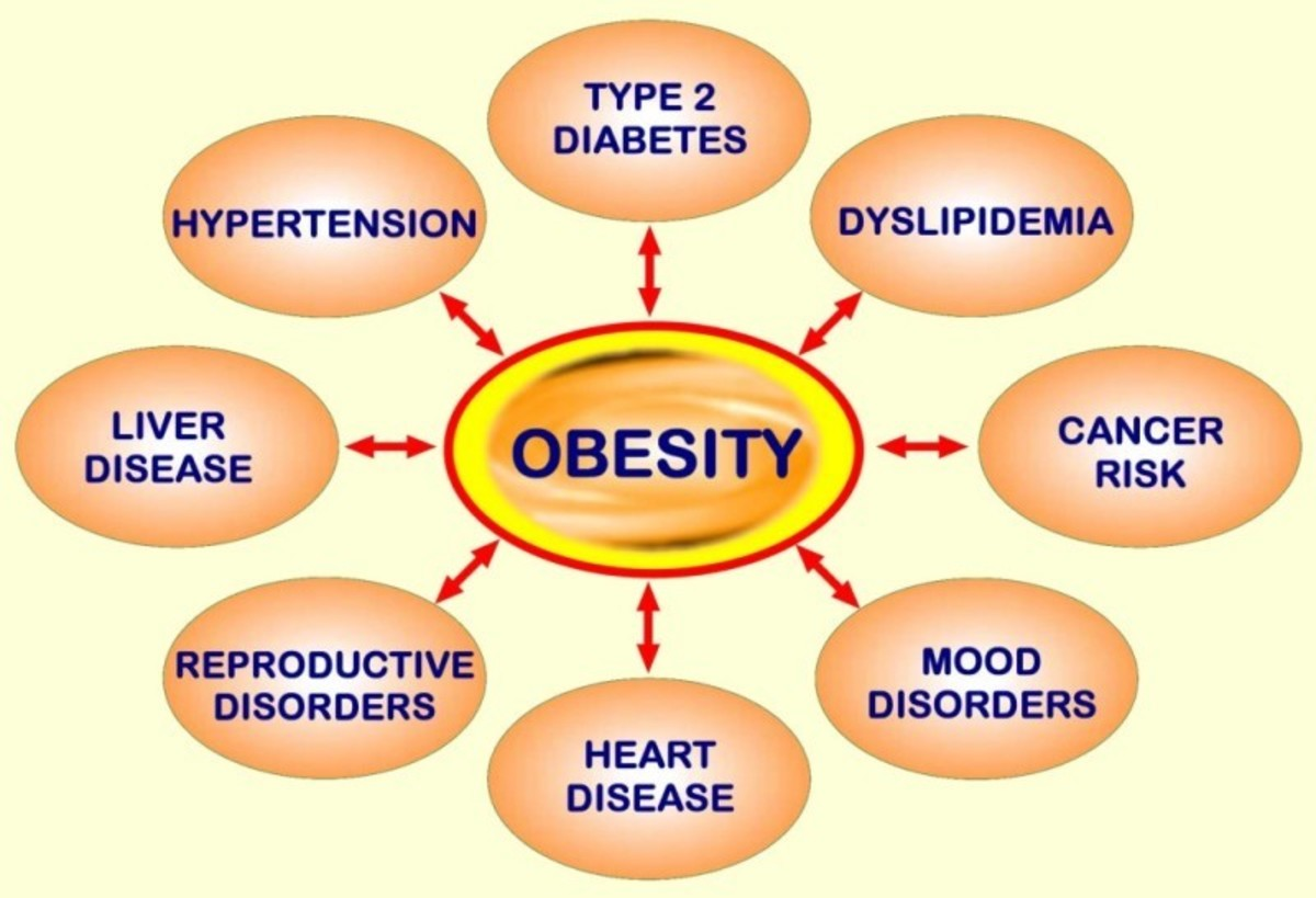 obesity connections with all disease...!