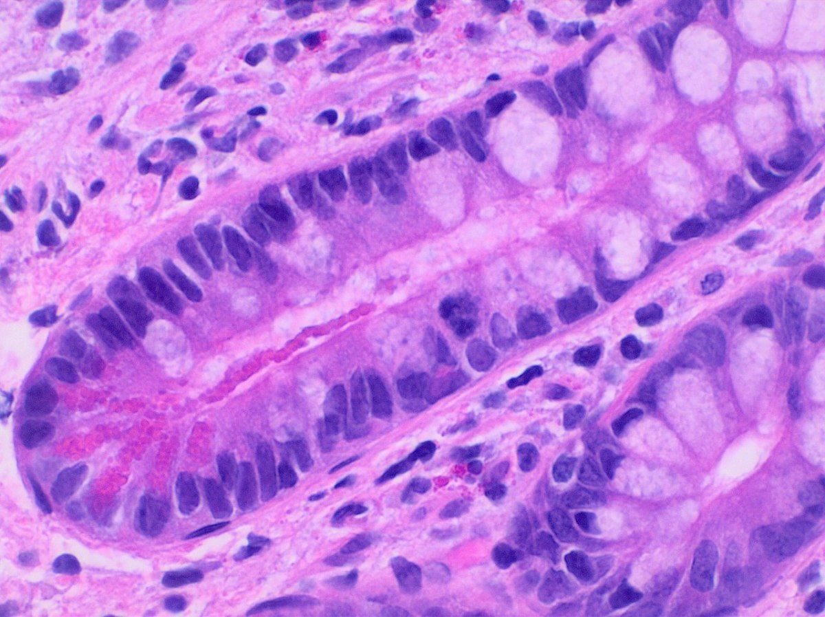 Stained Paneth cells (the large structures)