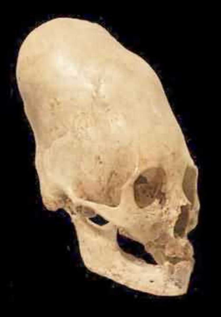 Other Evidence Of The Sun Gods - Huge Skull Found In South America