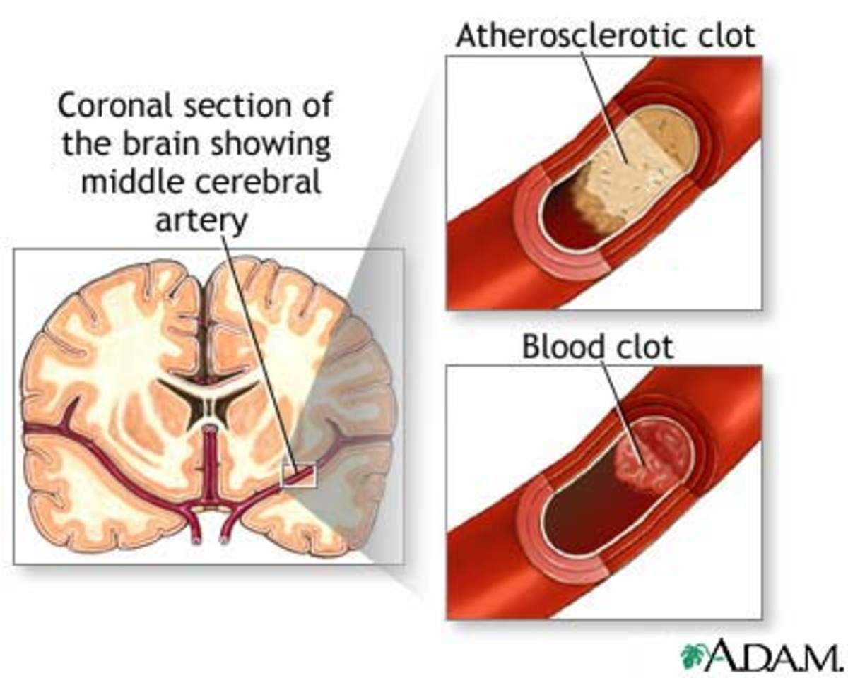 Cerebral Artery with healthy and plaque artery pictures courtesy of http://health.allrefer.com/health/stroke-pictures-images.html