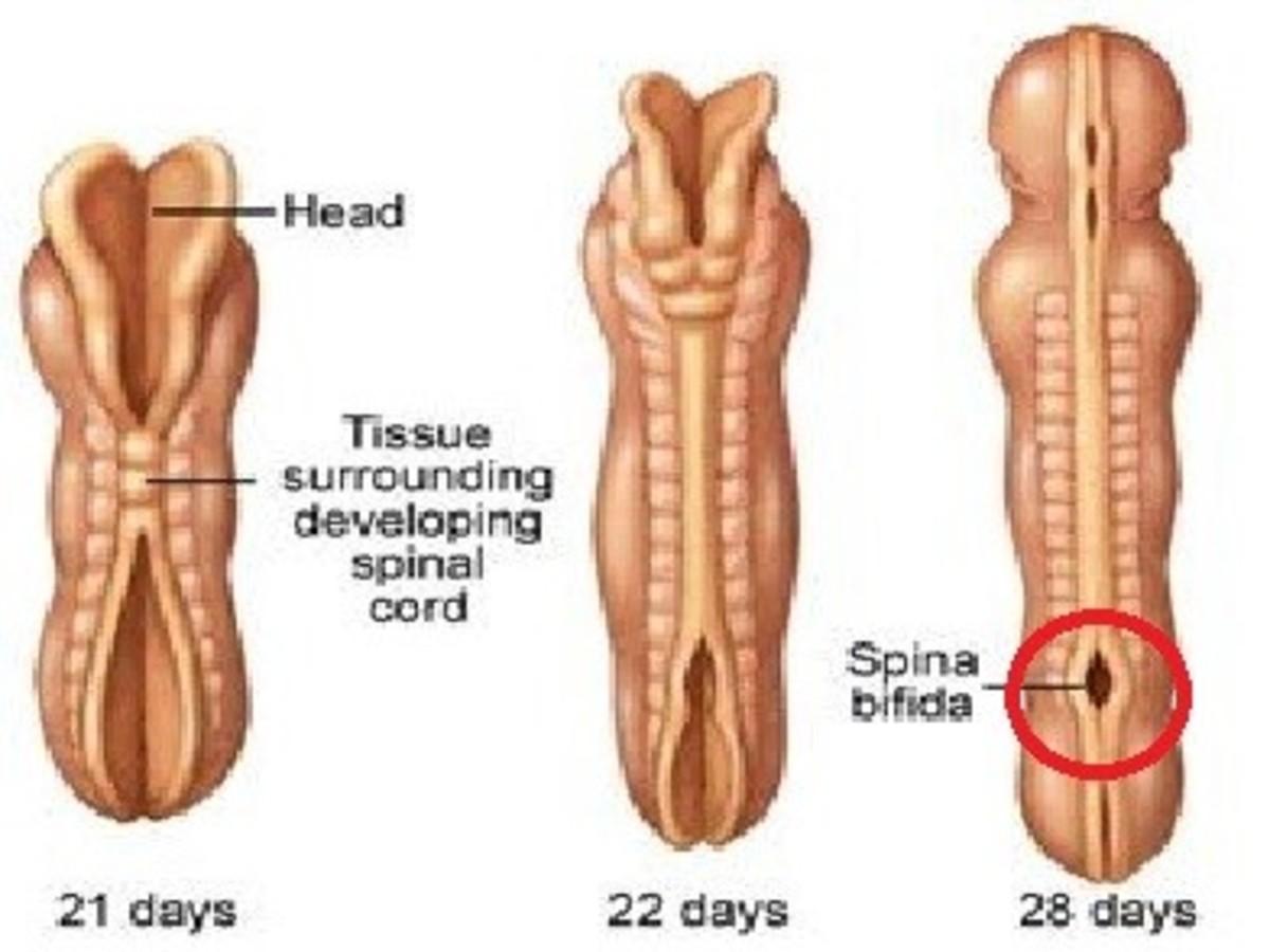 Formation of Spina Bifoda