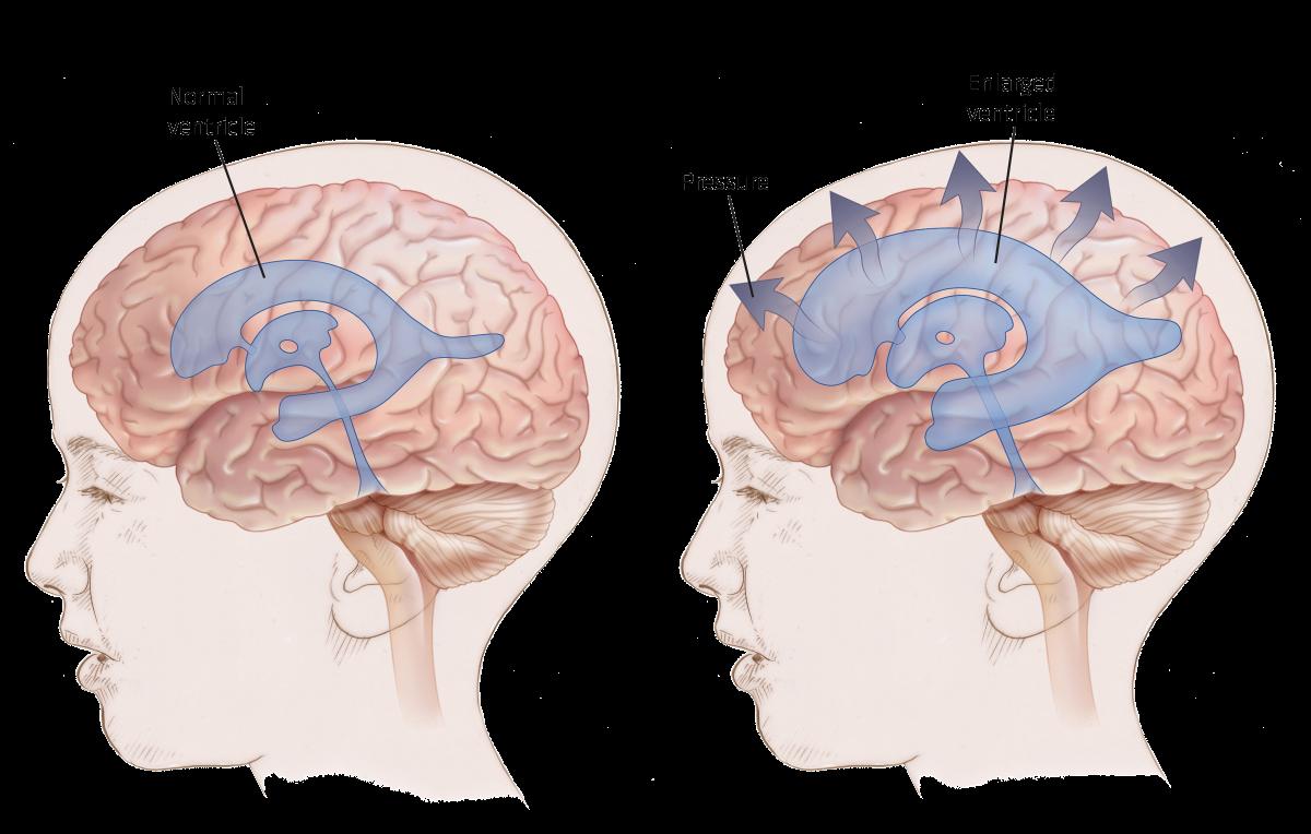 hydrocephalus-in-pediatrics