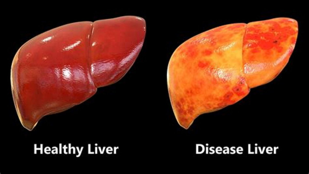 best-foods-for-fatty-liver