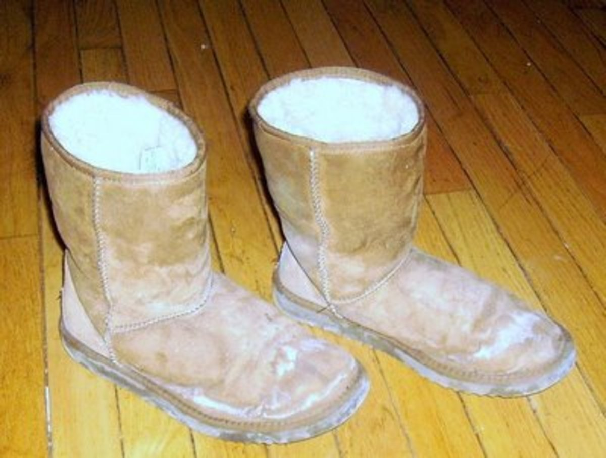 Dirty UGG boots