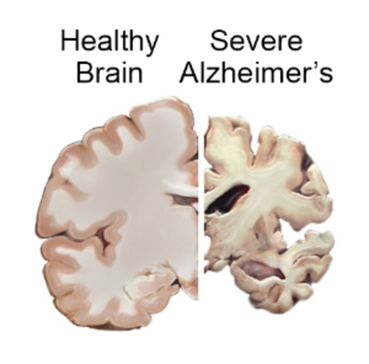 alzheimers-prevention-or-lengthening-independent-living-if-you-already-have-it