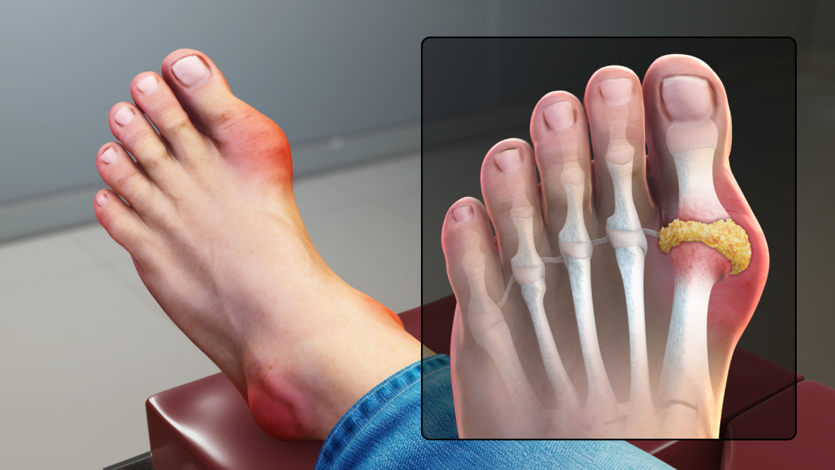 Gout Signs